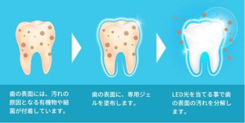 LED照射